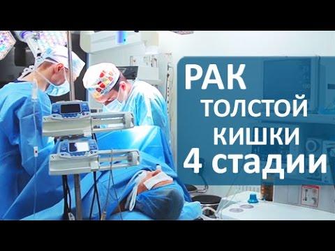 Лечение рака 4 стадии. Хирургическое лечение рака толстой кишки 4 стадии. Клиника колопроктологии.