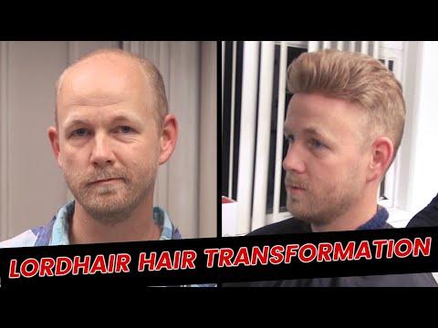 Lordhair Hair Transformation | Lordhair Men's Hair Systems