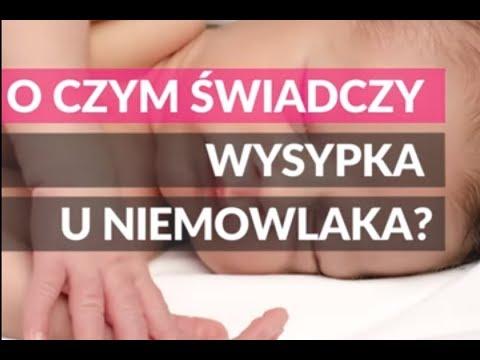 Plastikowa klatka piersiowa Nizhnevartovsk