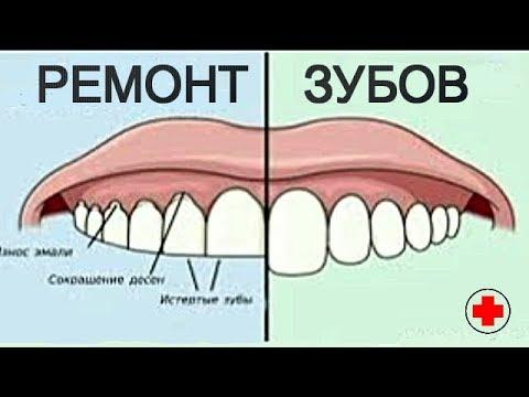 Почему Зубники не ставят ДОЛГОВЕЧНЫЕ ПЛОМБЫ? Невыгодно! ТРЕБУЙТЕ фотополимер!