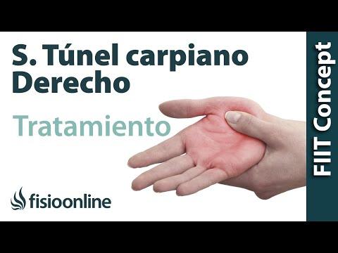 El Síndrome Del Tunel Carpiano. Tratamiento y Causas