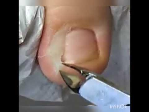 Sil faut faire lopération à la varicosité si les veines non bolyat