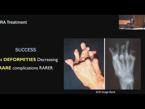 Térdízület kezelésében reumatoid artrosis