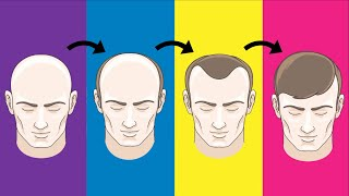 Top 5 Hair Loss Solutions That Actually Work
