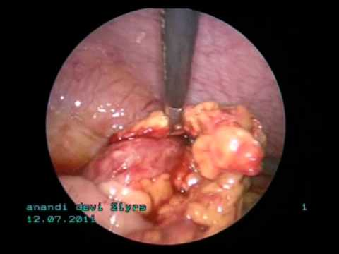 laparoscopic  management of early appendicular lump