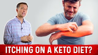 Are You Itching on a Ketogenic Diet? – Dr.Berg on Keto Rash