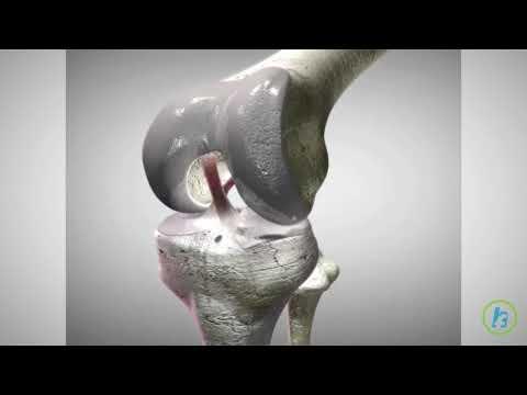 Simptome de durere în articulațiile degetelor mari