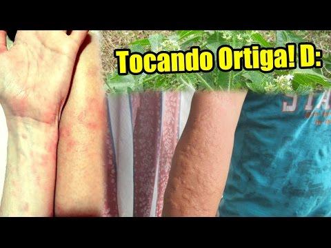 Tsindol para los niños a atopicheskom la dermatitis las revocaciones