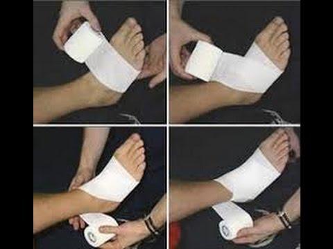 Loedème des pieds la varicosité que traiter