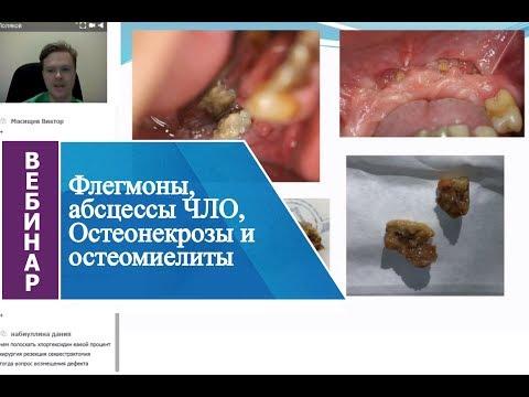 Вебинар «Флегмоны, абсцессы ЧЛО, Остеонекрозы и остеомиелиты».
