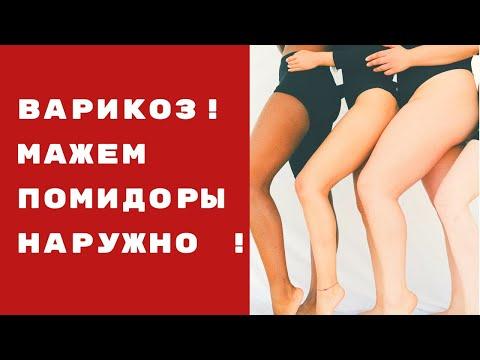 Die Hauttrockenheit auf den Beinen bei warikose