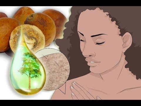 An welchen das Vitamin wenn früh sedejut das Haar fehlt