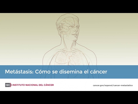 Cancer hodgkin hereditaire
