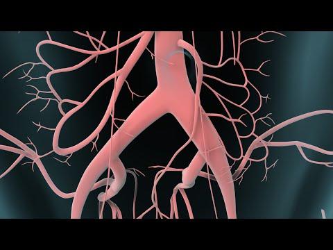 Come togliere la gonfiezza di gambe a varicosity