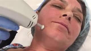 Новото АЗ  -  Таня на втора процедура за подмладяване на лицето