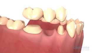 Dental bridges types - Lapointe dental centres