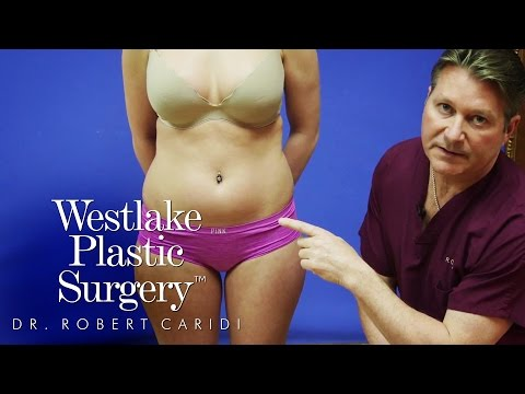Educational Video: Everything You Should Know About Liposuction