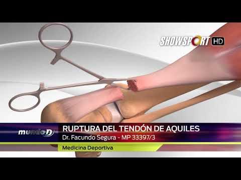 Tratament de miniscul articulației genunchiului