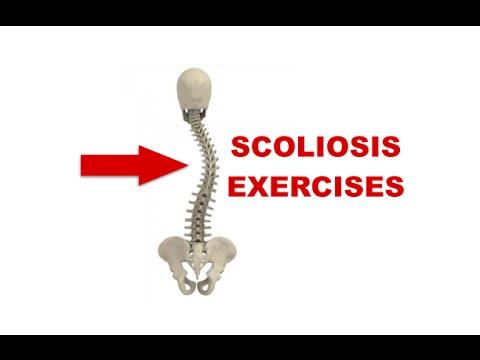 1 gradi di scoliosis ed esercizi fisici