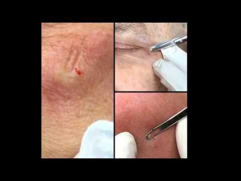 Pimple Triple Crown!