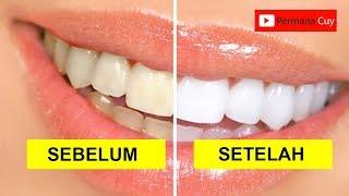 Cara Memutihkan Gigi Dengan Kulit Jeruk ฟร ว ด โอออนไลน ด ท ว