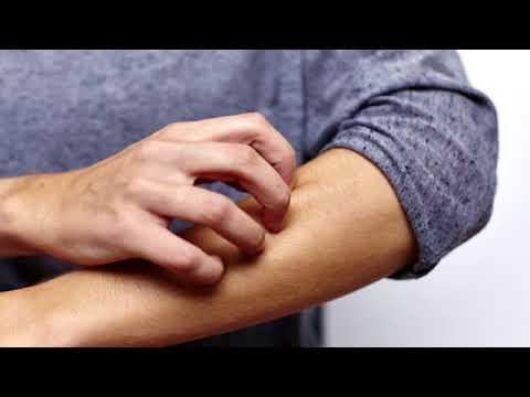 Die Krankheit des Magens und das Ekzem
