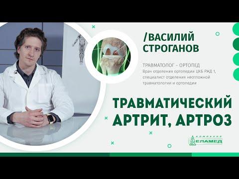 Травматический артрит и артроз: причины, симптомы и лечение | Василий Строганов