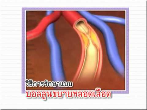 ภาพขา thrombophlebitis