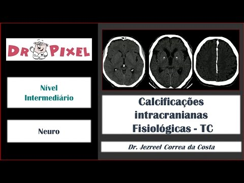 Nefroangioskleroz hipertensiva ICD-10