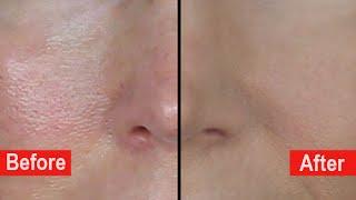 How To Hide Large Pores! Poreless Mini-Bake Foundation Tutorial