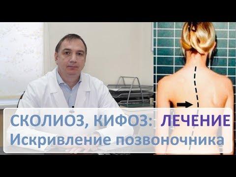 Как лечить сколиоз 2-3 степени