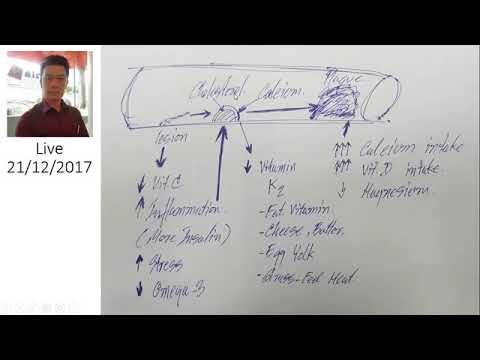 Sclerotherapy ของขา Voronezh