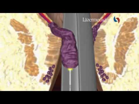 Calculous hronisks prostatīts