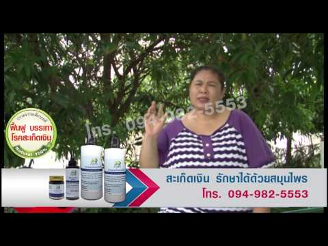 Neurodermatitis รักษา homeopathic