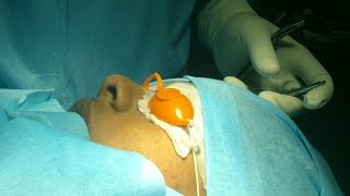 Patients Wakes After Nose Surgery - Dr Paulose FRCS (ENT)