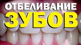 Смотреть онлайн Какие виды отбеливания зубов бывают