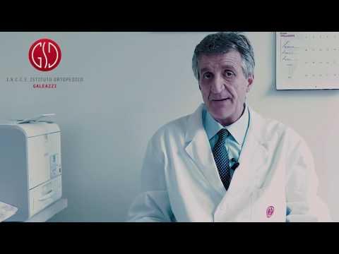 Colonna vertebrale e ernia ernia del disco