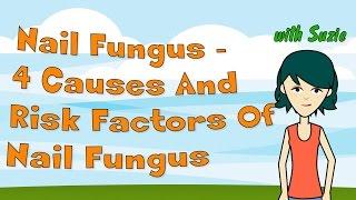 Nail Fungus - 4 Causes And Risk Factors Of Nail Fungus