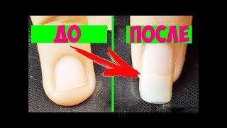 КАК ОТРАСТИТЬ ДЛИННЫЕ  НОГТИ ЗА НЕДЕЛЮ? Красивые ногти теперь не проблема!
