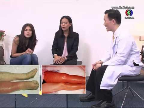 มีคราบสีแดงที่ขาเนื่องจากเส้นเลือดขอด