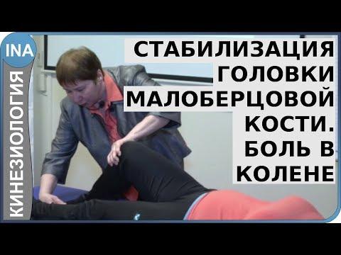 Стабилизация головки малоберцовой кости. Боль в колене. Кинезиология