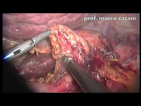 Il trattamento laser di prostatite cronica