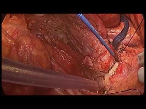 Chirurgia cytoredukcyjna oraz Dootrzewnowa Chemioterapia Perfuzyjna w Hipertermii w przypadku śluzaka rzekomego otrzewnej