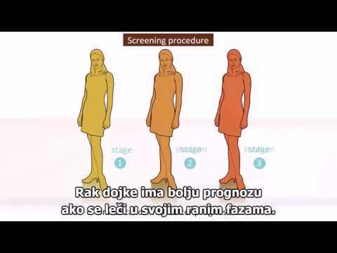 XP prostatitisa uzroka