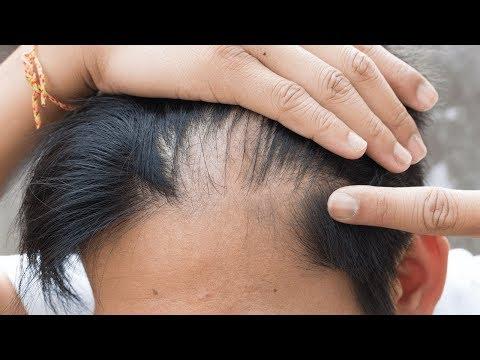 Die Maske für den Kopf vom Haarausfall mit gortschizej