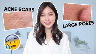 😨 How to prevent acne scars, How to reduce large pores? Skincare Q&A