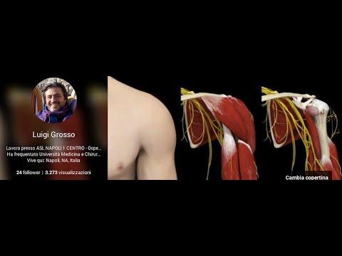 Osteocondrosi della L3-4 disco intervertebrale