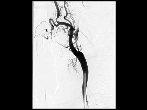 Halsschmerzen und ein Ausschlag am Hals