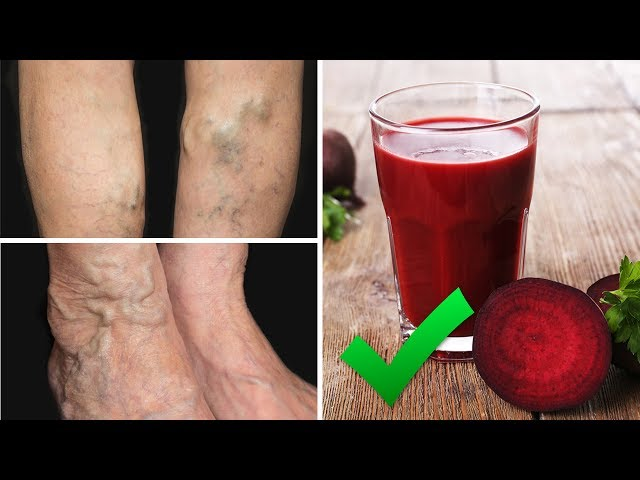 Drink This Juice To Prevent and Treat Varicose Veins | Natural Cures