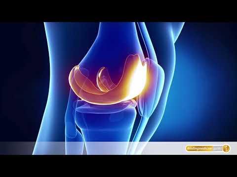 Schmerzen in Osteochondrose der sakralen